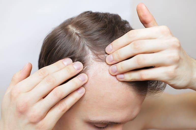 Man überprüft seinen Haarausfall mit seinen beiden Händen