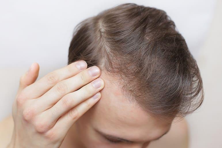 Junger Mann prüft mit seinen Fingern seinen Haarausfall