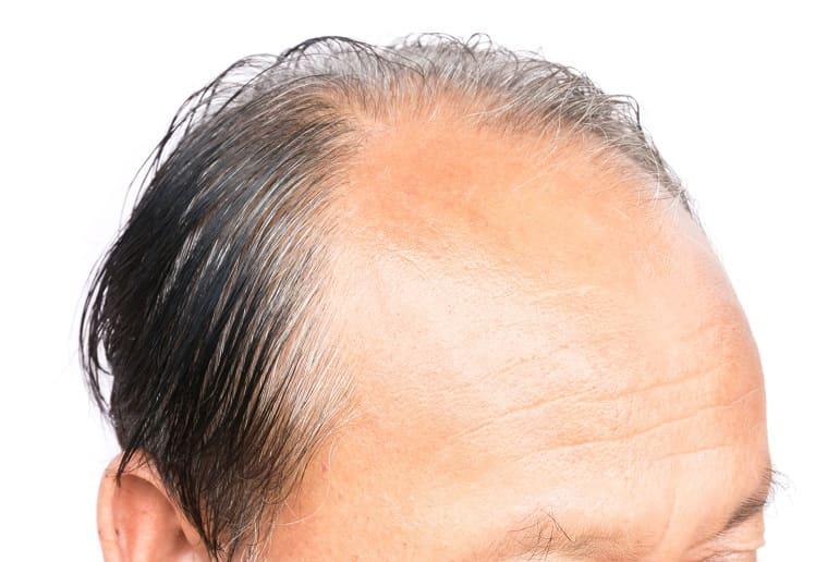 Nahaufnahme vom Kopf eines Mannes mit starkem Haarausfall
