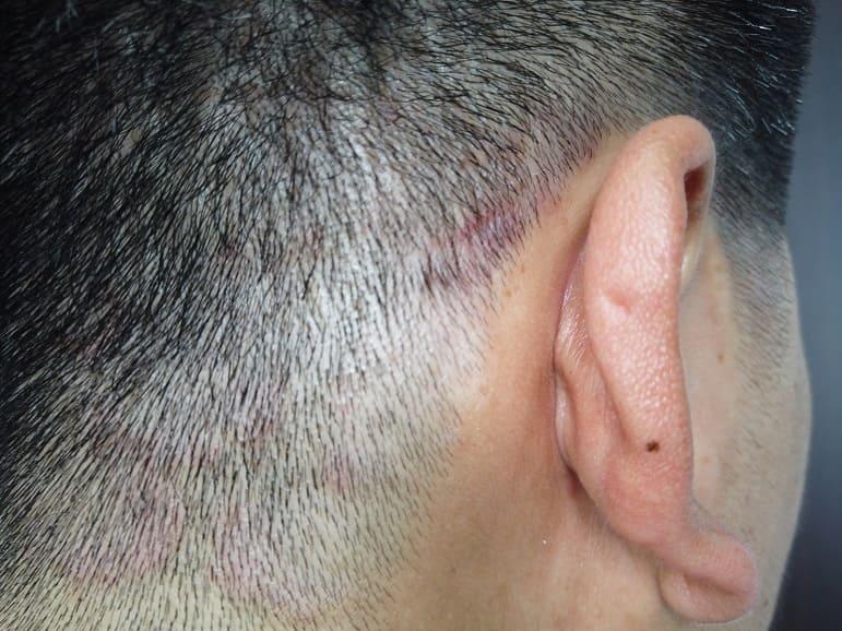 Kopfhaut eines Mannes mit Hefepilzbefall in der Nahaufnahme von hinten