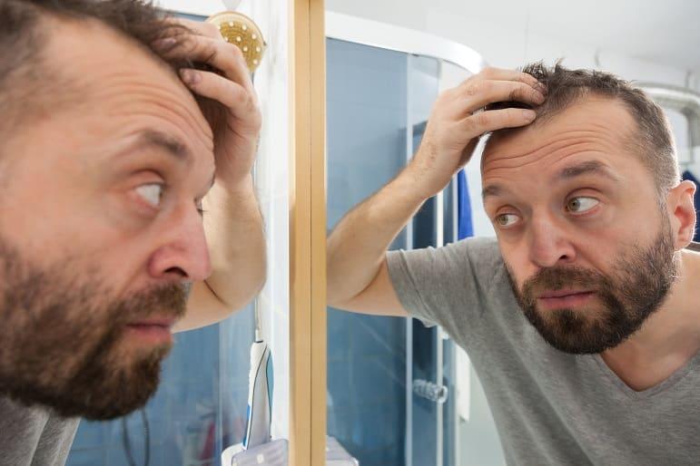 Mann prüft vor dem Spiegel im Badezimmer seinen Haarschwund