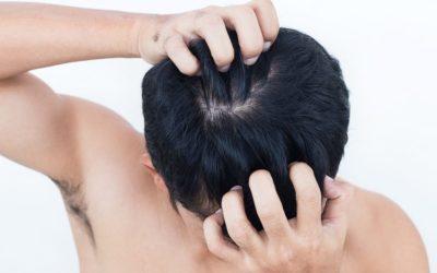 Haarausfall durch trockene Kopfhaut