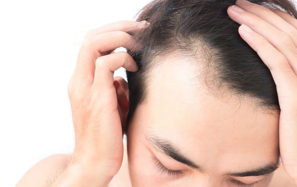 Junger Mann zeigt seine Geheimratsecken und Haarschwund indem er seine Haare mit beiden Händen nach hinten zieht