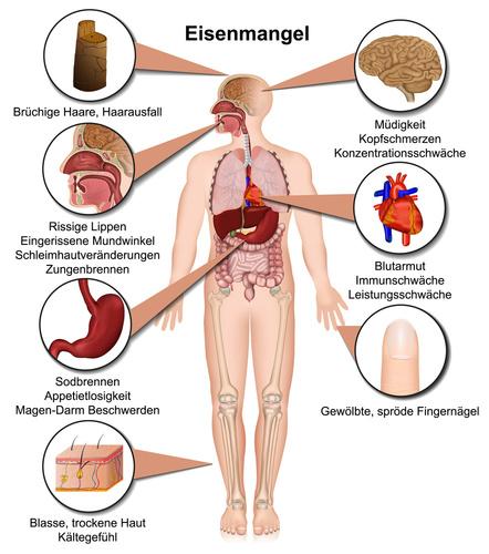 Abbildung zu Funktion von Eisen im menschlichen Körper