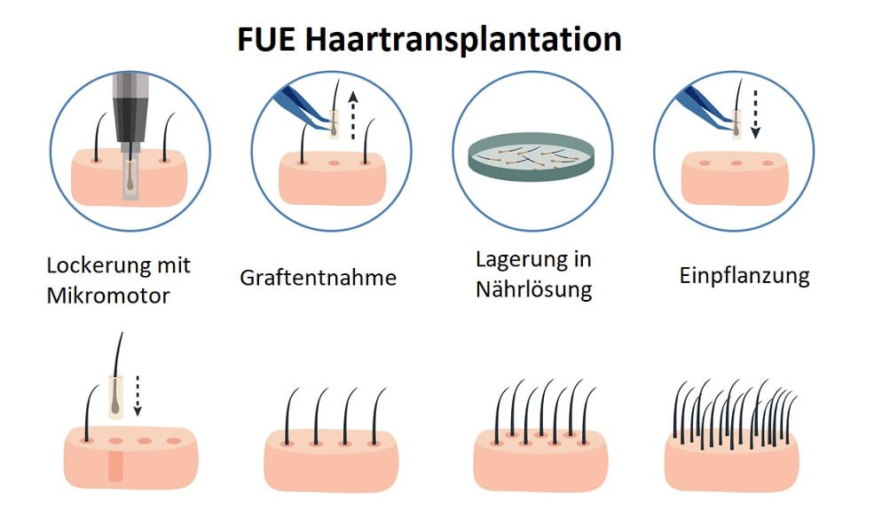 Infografik von Fue Haartransplantation