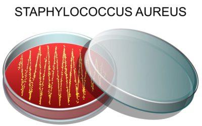 Haarausfall durch Staphylococcus aureus