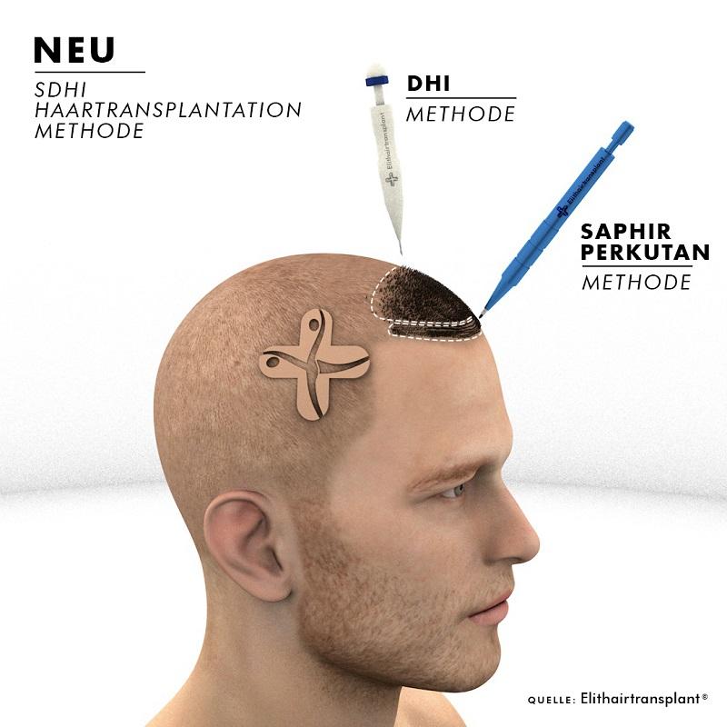 DHI, SHDI Haartransplantation Infrgrafik