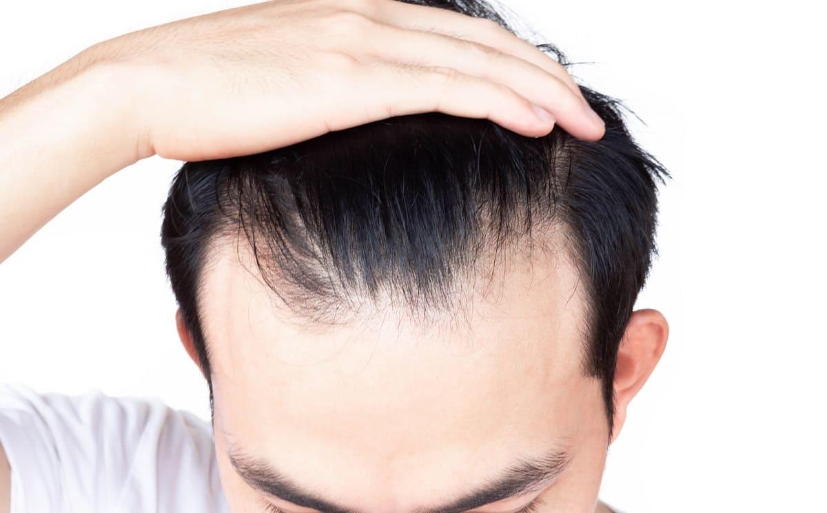 Mann zeigt seinen lichten Haaransatz