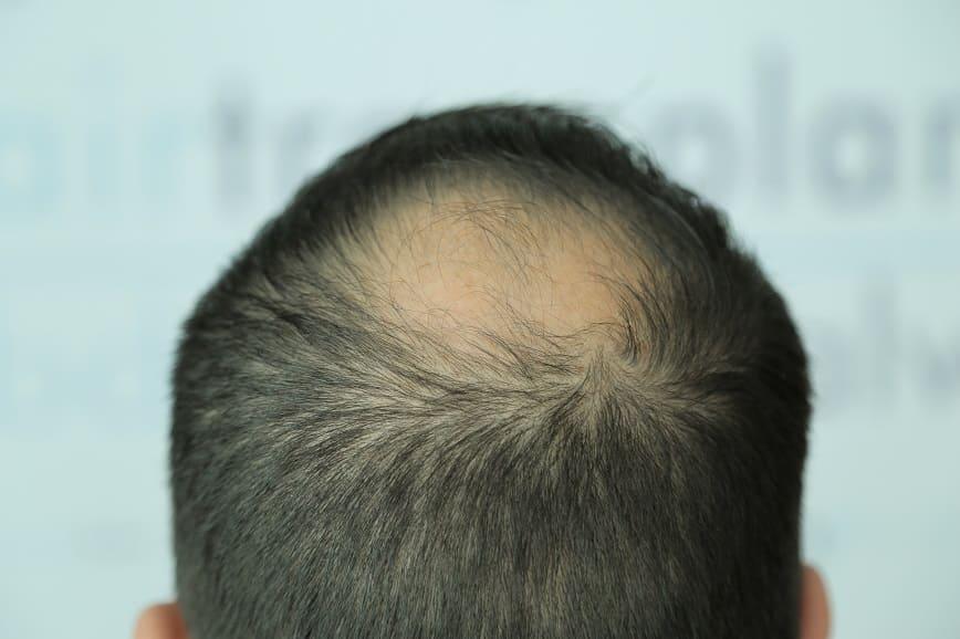 Haarausfall am Oberkopf