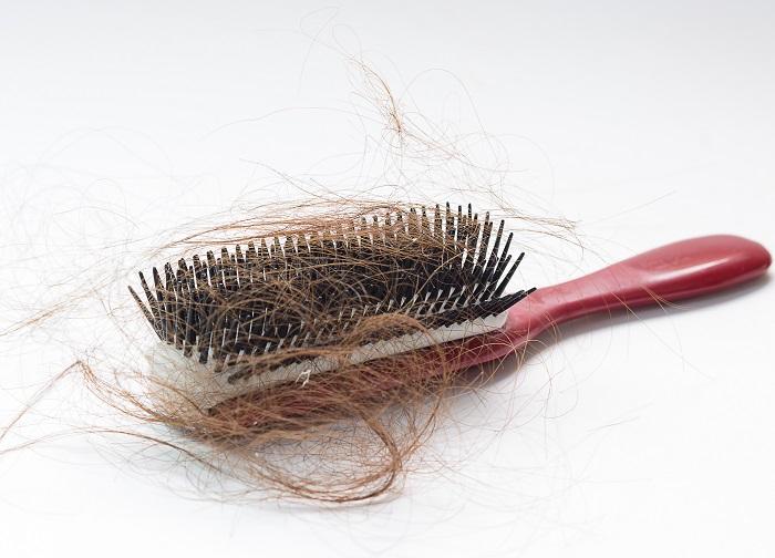 Alopecia universalis zur Perücke - Haarausfall