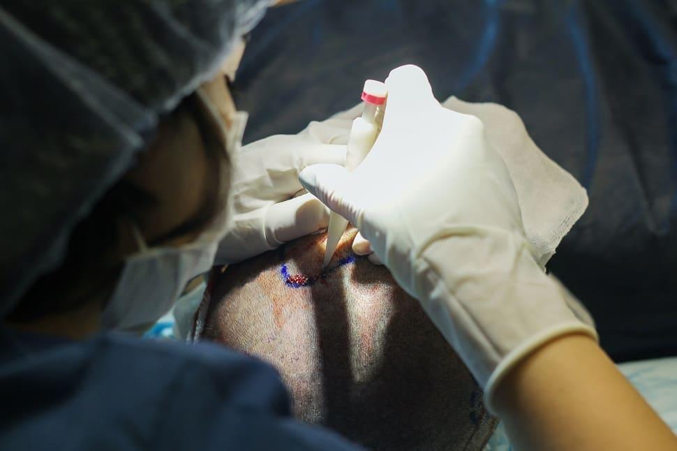 Nahaufnahme der DHI Behandlung am Hinterkopf mit Choi Implanter Stift