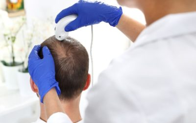 Dermatologe fuehrt eine Haaranalyse mithilfe einer Lupe durch