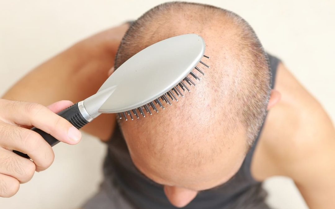 Haarwachstumsstörungen – Was tun, wenn das Haar nicht wächst?