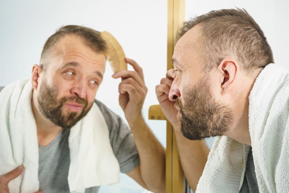 Mann steht vor dem Spiegel und kämmt sein von Haarausfall betroffenes Haupthaar