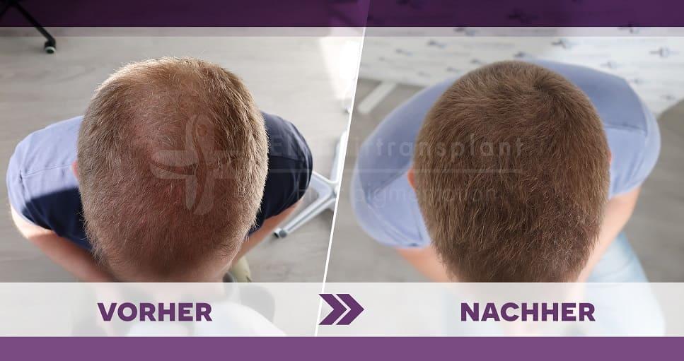 Mann senkt den Kopf und zeigt vorher nachher Vergleich bei einer Haarpigmentierung