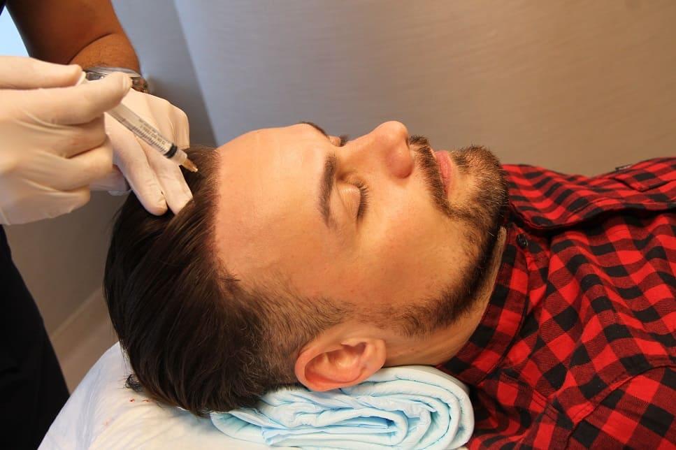 Mann erhält eine PRP Behandlung mit Injektion