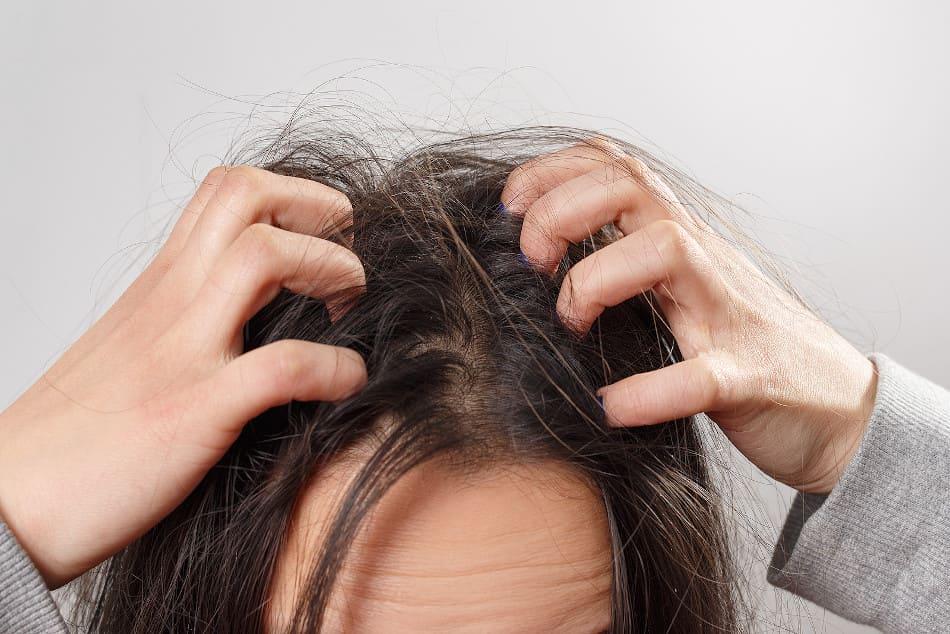 Frau kratzt ihre Kopfhaut