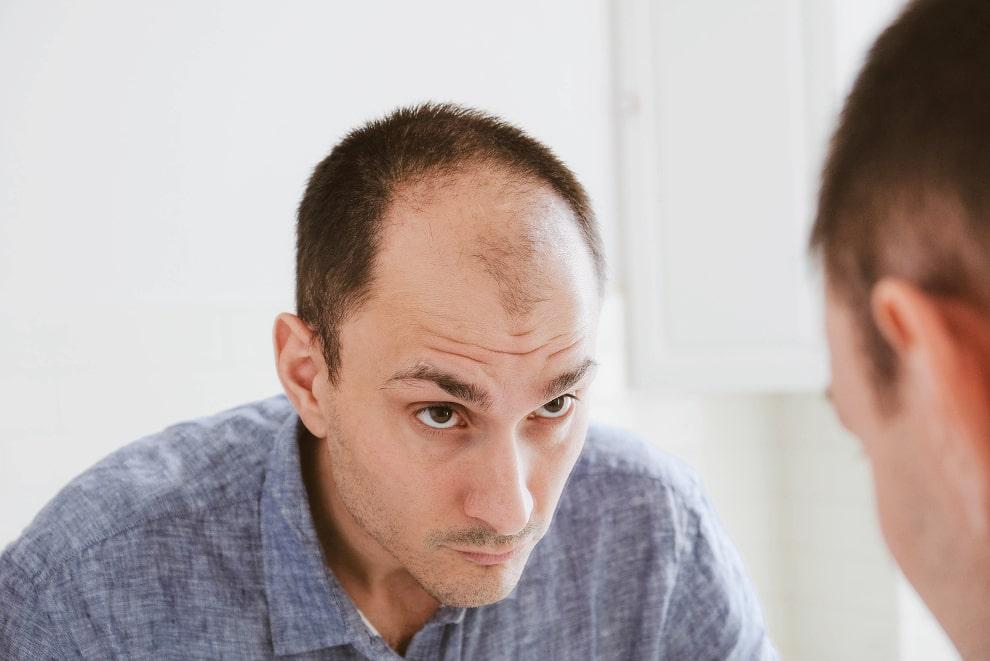 Mann begutachtet sein dünnes Haar im Spiegel