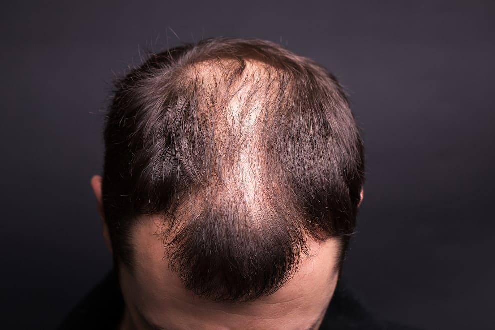 Mann beugt sich nach vorne und zeigt seinen Haarausfall in Nahaufnahme