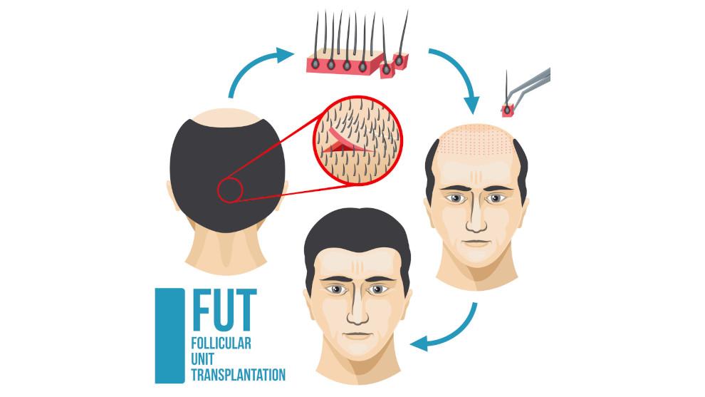 Grafik zur Veranschaulichung der FUT Methode