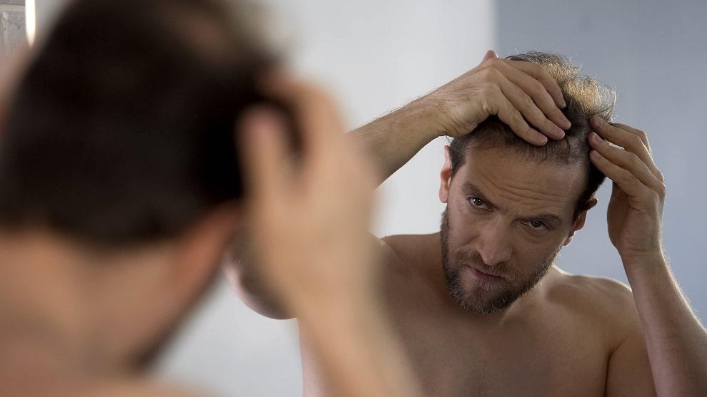 Junger Mann schaut sich seine kahlen Stellen am Kopf im Spiegel an