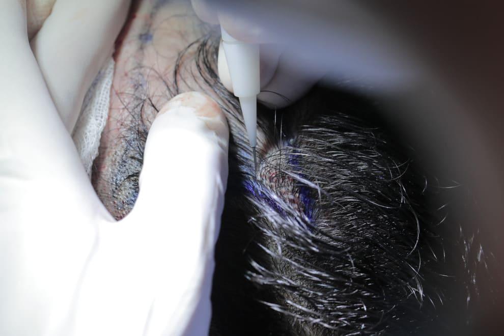Nahaufnahme eines DHI Implanters bei der Haartransplantation