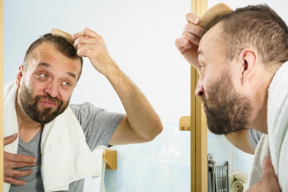 Mann schaut im Spiegel wie viele Grafts für seine Geheimratsecken nötig sind