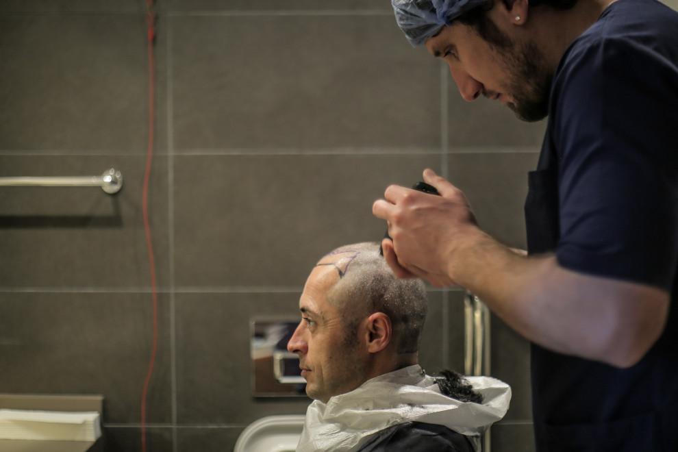 Haartransplantation nach Haarausfall durch Haarspray