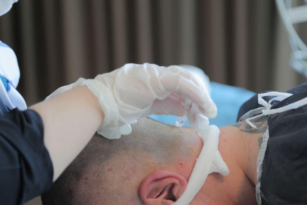 Patient erhält Info wie viele Grafts für den Bart notwendig sind
