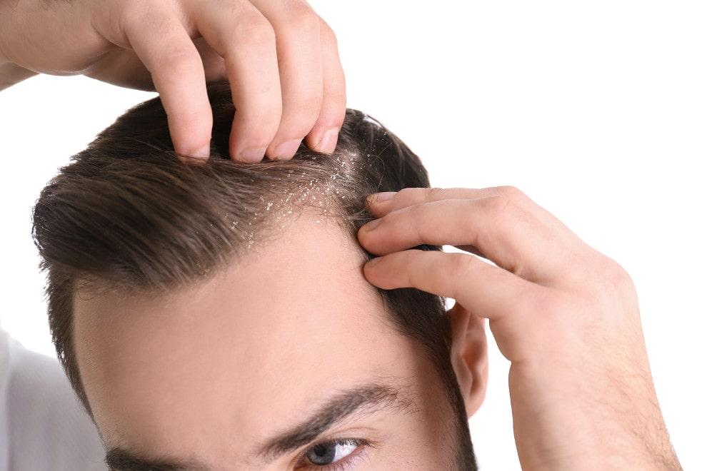 Mann mit Kopfhautpilz leidet an Haarausfall durch Kratzen