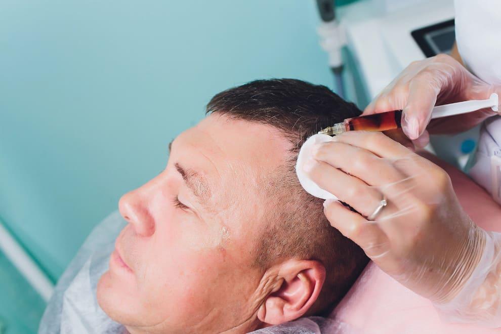 Mann bei PRP Behandlung um Haarausfall und kahle Stellen zu beheben