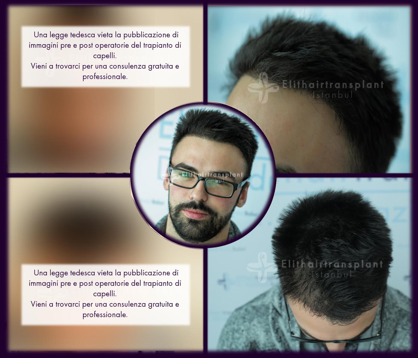 Risultati prima e dopo operazione trapianto di capelli in Turchia a Istanbul