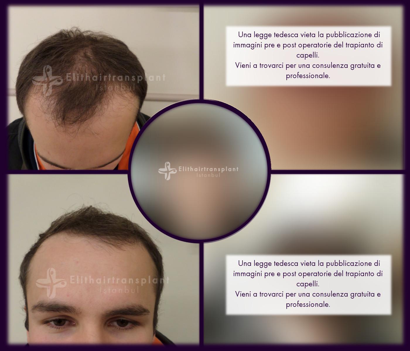 Prima e dopo trapianto capelli in Turchia FUE Elithairtransplant