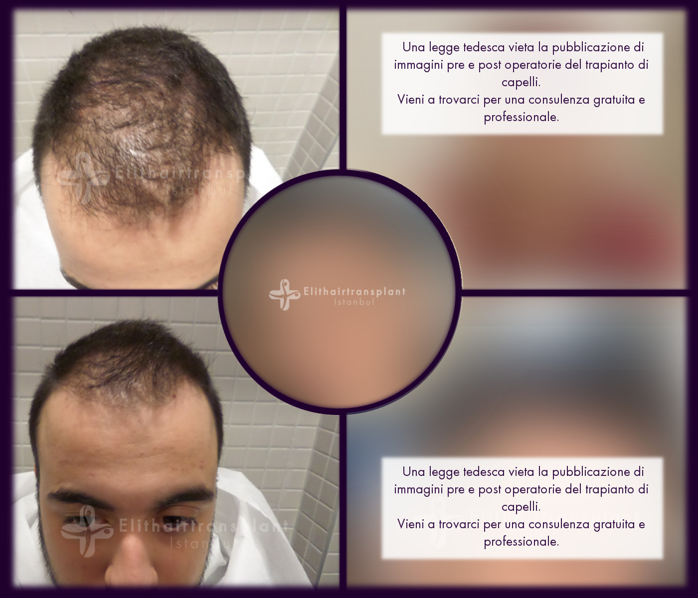 Trapianto capelli Turchia pre e post operatorio Elithairtransplant