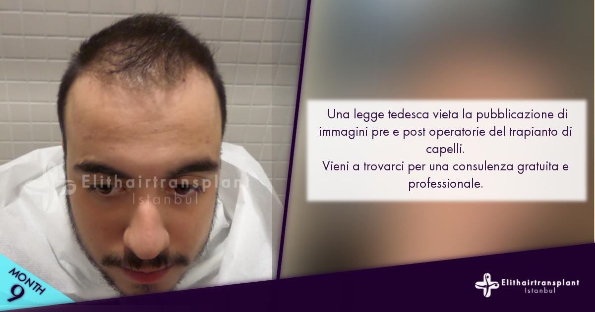 Trapianto capelli Istanbul pre e post operazione immagini