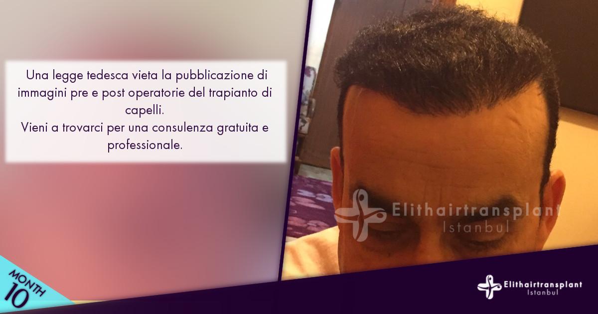 Info Trapianto capelli Turchia prima e dopo dell'operazione immagini
