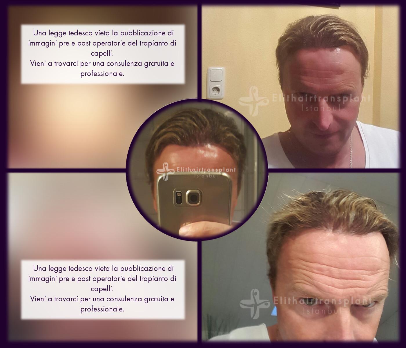 Operazione trapianto capelli Istanbul Elithairtransplant prima e dopo con metodo FUE