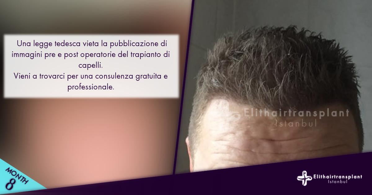 Informazioni trapianto di capelli Istanbul Turchia prima e dopo operazione immagini Elithairtransplant