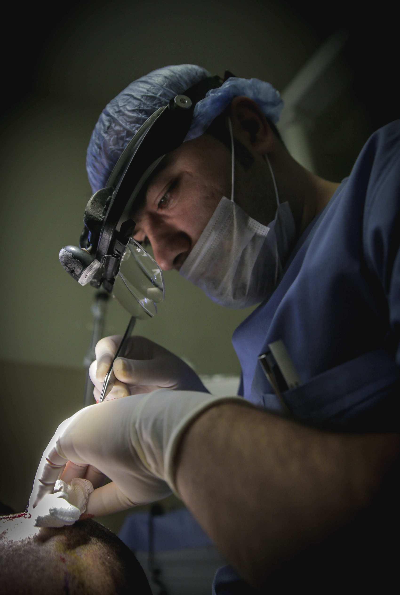 Operazione trapianto capelli Turchia Dr Balwi