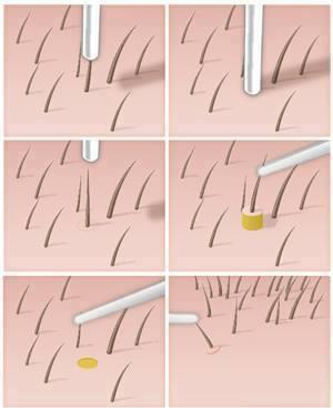 Tecniche chirurgiche per trattare l'alopecia