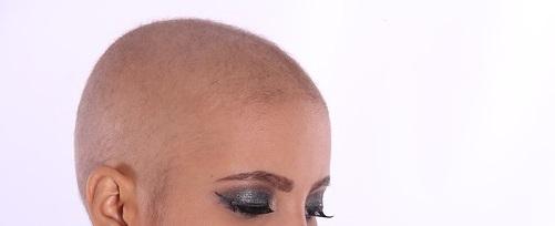Errori durante il trapianto di capelli