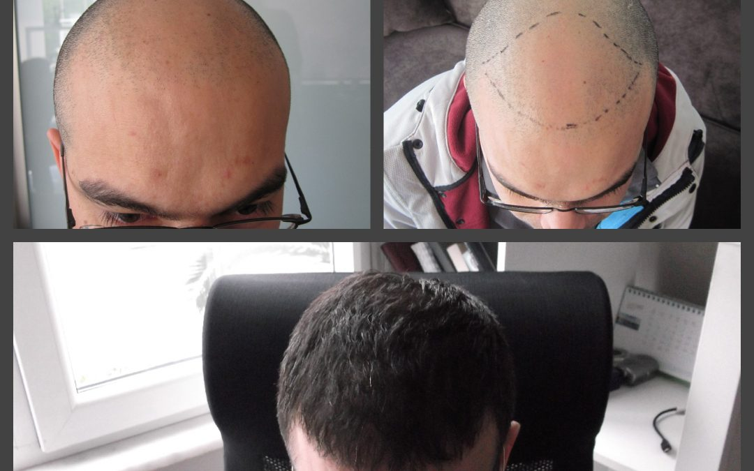 Trapianto per alopecia androgenetica