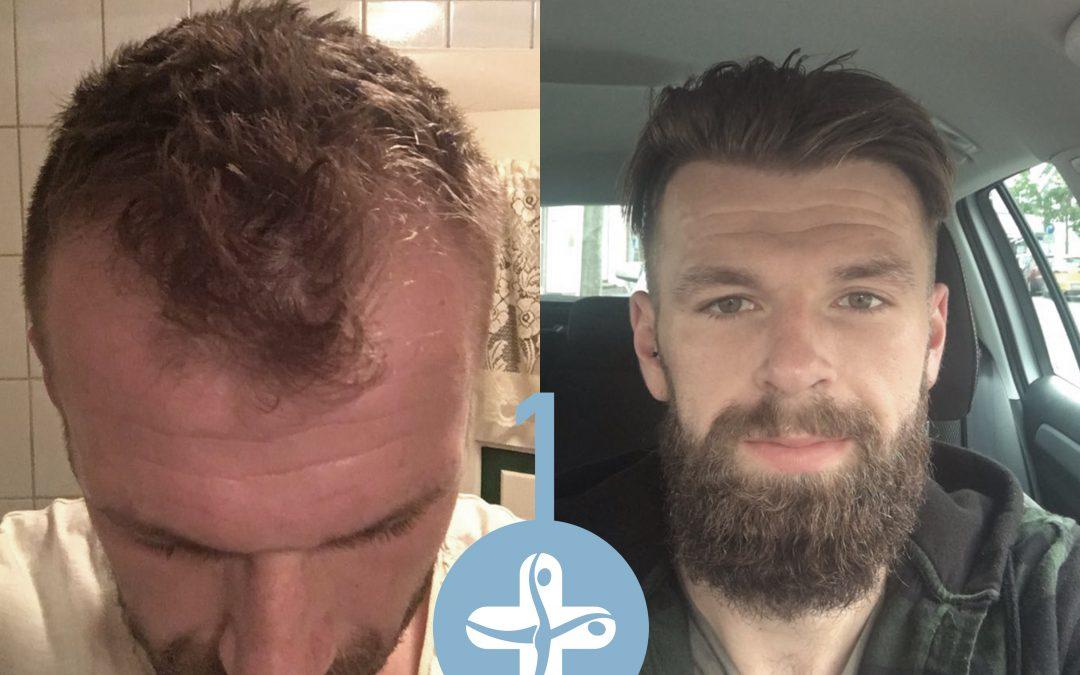 Trapianto capelli FUE come funziona passo a passo