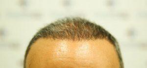 prurito dopo il trapianto di capelli