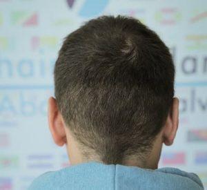 prerequisiti per un trapianto di capelli