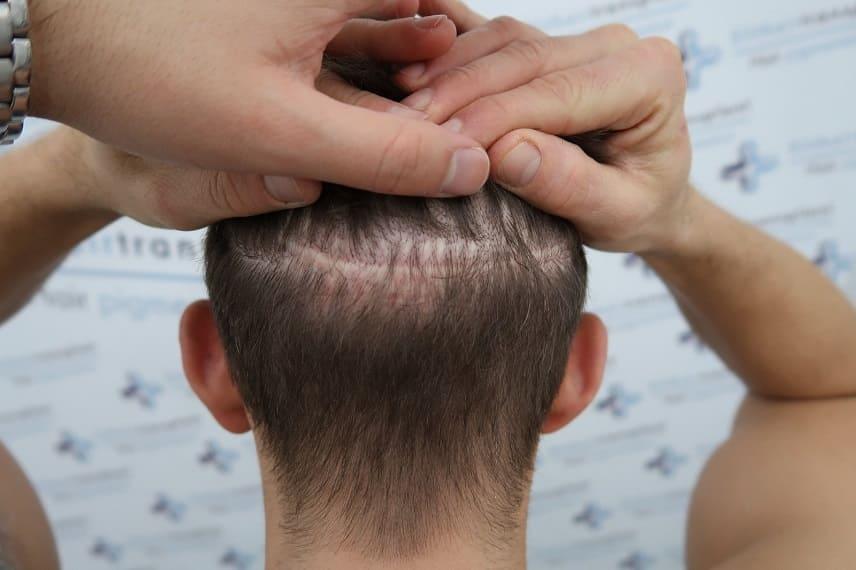 Il trapianto di capelli sulle cicatrici