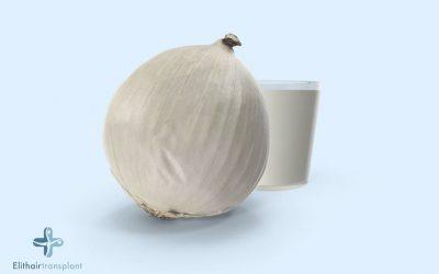 Tra gli insoliti rimedi contro la calvizie: il succo di cipolle!
