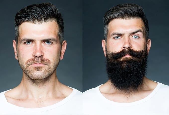trapianto baffi e barba la differenza