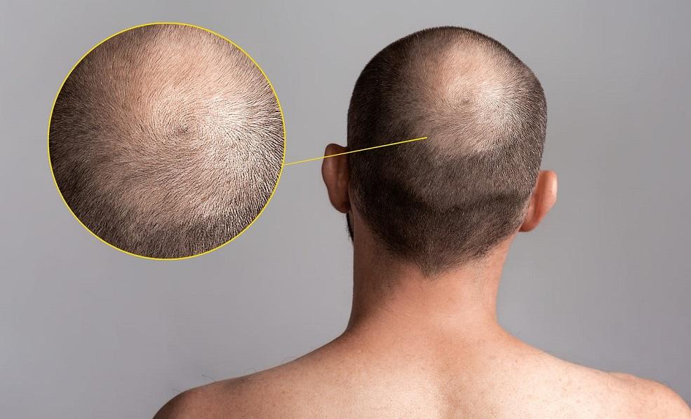 il lisinopril causa la caduta dei capelli