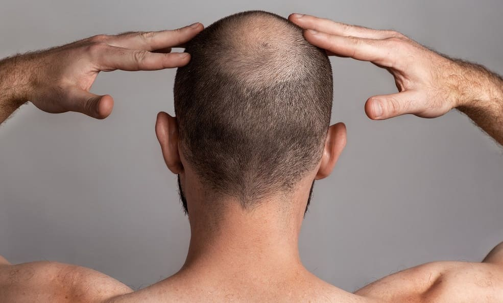 perdita capelli a ciocche